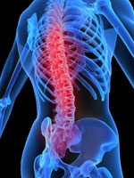 Degenerative Disc Disease Reno NV