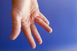 Dupuytren's Contracture Reno NV