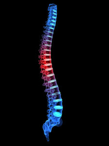 Spine Specialist South Lake Tahoe CA